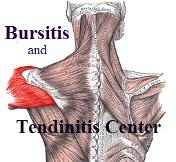 Bursitis and Tendinitis Info